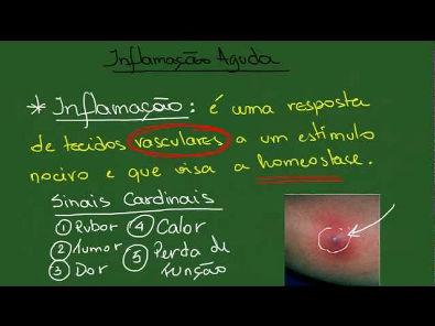 Inflamação Aguda - Resumo - Patologia Geral