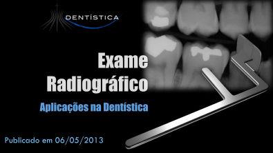 Aula 08 - Exames Radiográficos em Dentística