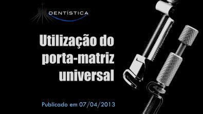 Dica Laboratorial/Clínica 02 - Utilização do porta-matriz universal