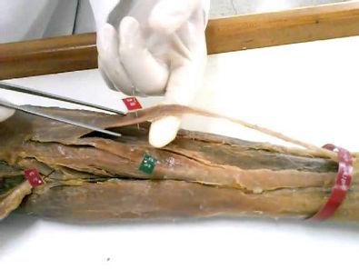 CaduAnatomia - Antebraço (02 - Parte Anterior)