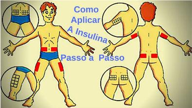 como aplicar a insulina passo a passo