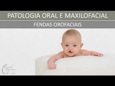 Fendas Orofaciais - Patologia Oral