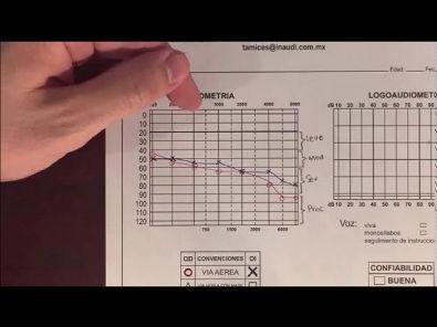 Video de como interpretar una audiometría
