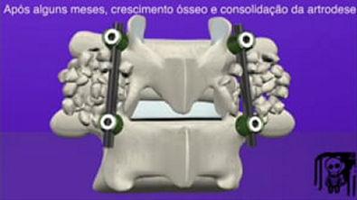 Cirurgia de Coluna Artrodese Lombar