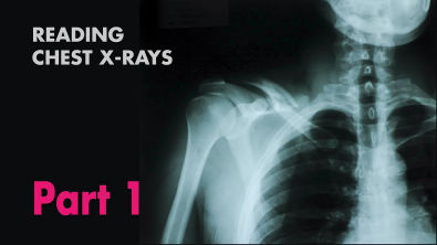 Anatomy of a Chest X-Ray - How to Read a Chest X-Ray (Part 1) - MEDZCOOL