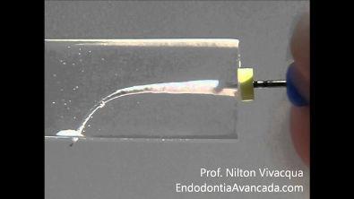 Instrumentação Endodôntica Manual - Prof Nilton Vivacqua