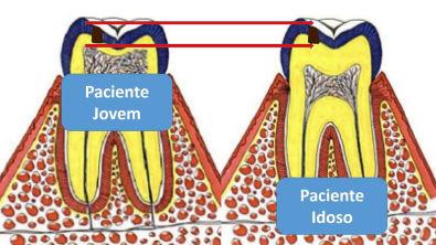 4ª Aula Dentística - Proteção do complexo dentinopulpar