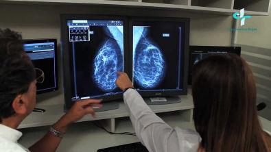 Mamografia Digital Diagnostico Rojas SRL