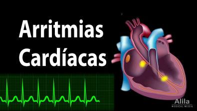 Arritmias Cardíacas, Animação Alila Medical Media Português