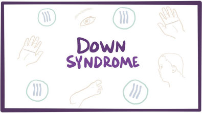 Síndrome de Down (trissomia 21) - causas, sintomas, diagnóstico e patologia