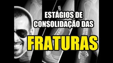 Vídeo Aula 127 - Osteologia - Fraturas: Estágios de Consolidação - Sistema Ósseo/Esquelético