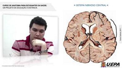 03 1 - Divisão do Sistema Nervoso- Central, Periférico, Somático e Autônomo
