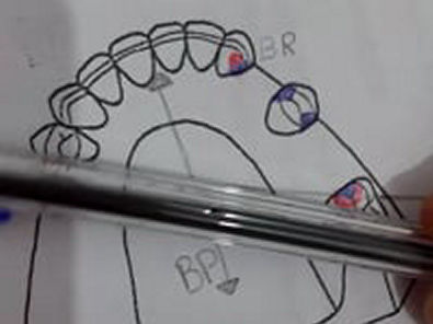 biomecanica da PPR