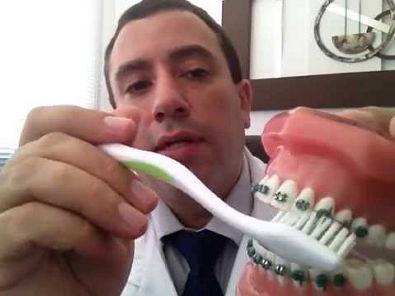 Higienização com aparelho ortodontico