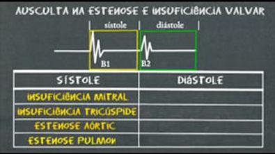 ausculta-cardiaca-na-estenose-e-insuficiencia-valvares