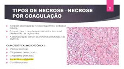 Lesão irreversível - NECROSE (PARTE II)