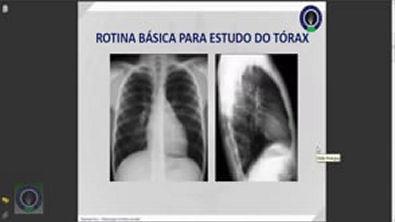 Vídeo Aula 002 - Anatomia Radiológica do Tórax [Radiologia na Palma da Mão]