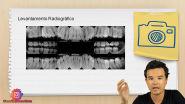 Técnica da Bissetriz e Técnica do Paralelismo - Resumo #10 - Concurso Público de Odontologia