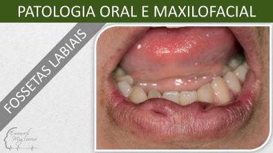 Fossetas Labiais - Patologia Oral e Maxilofacial